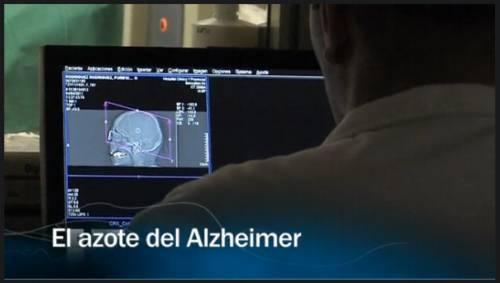 El azote del Alzheimer